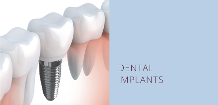 DENTAL IMPLANTS BUTTON Northwest Implant Sleep Dentistry Oral Surgeon Washington