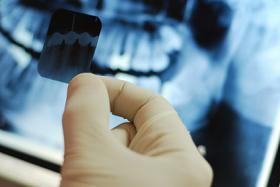 Dental xray images held in hand with xray background