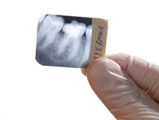 Dental Xray teeth  x-ray